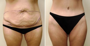 Abdominoplasty toronto before and after